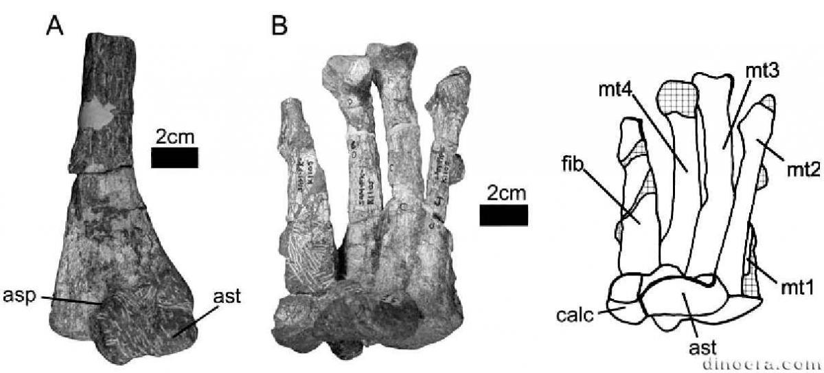 таранная кость артроз